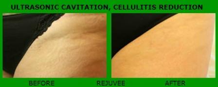 ULTRASONIC CAVITATION RF – CLELULIT REDUCTION