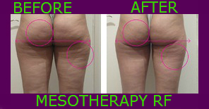 mesotherapy cellular remuval