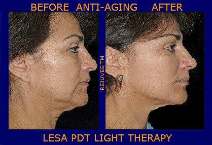 Anti-aging PDT – Light Therapy