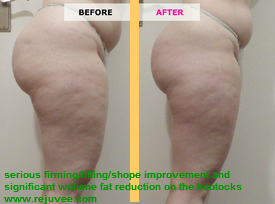 Firming -lifting -shape improvement and significant volume fat reduction on the buttocks
