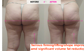 Serious firming , lifting shape improvement and significant volume fat reduction on the buttocks