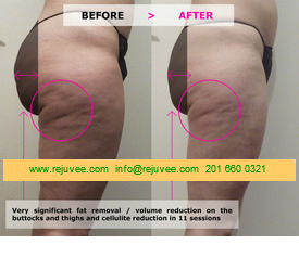 Significant fat removal – volume reduction on the buttocks and thighs and cellulite reduction in 11 sessions