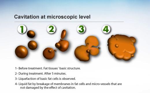 Cavitation at microscopic level
