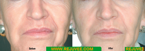 Indications in cosmetics: acne, wrinkles, stretch marks, cellulite, scars, and general cell revitalization and rejuvenation..