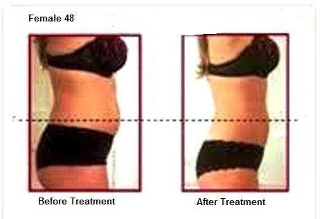 Ultrasound Cavitation RF – Treatment